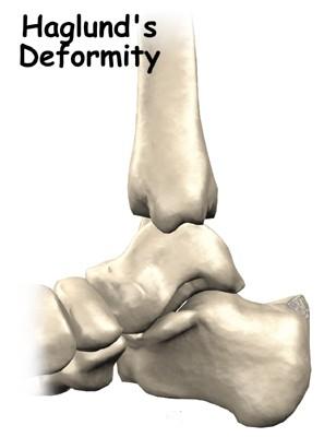 Spina calcaneare e sindrome di Haglund